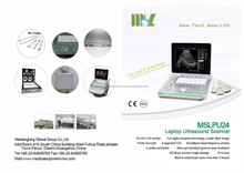 MSLPU24K ultrasound factory price Portable echocardiography unit