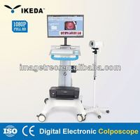 electronic colposcope software/laptop colpscope for gynaecology diagnose