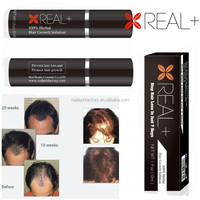 REAL PLUS -100% guaranteed hair grow hair growth spray effective anti hair loss