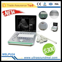 Digital Portable/ Mobile/ Laptop Ultrasound Scanner MSLPU24Z