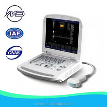 Handheld Color Doppler Ultrasonic Units For Diagnosing bls-X2
