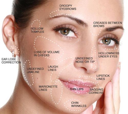 Acid Hyaluronic For Face Acide Hyaluronic Derma Filler
