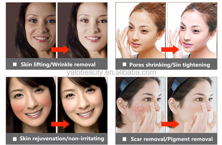 Belleza microagujas cuidado personal col geno inyectable - Rodillo para lacar ...