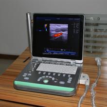 Digital completa Ce aprobó Portable 3d Color Doppler de ultrasonido precio