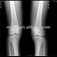 Konica medical x-ray film