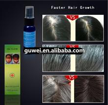 hot selling yuda pilatory hair growth hair loss spray solution oil