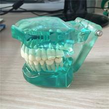 factory price dental use plastic teeth model good quality hot sale