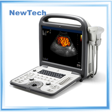 The price of portable color doppler ultrasound equipments