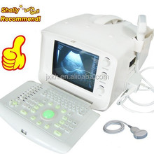 2015 Brand New CE Approved Digital Portable Style Ultrasound Machine/Scanner with cheap price