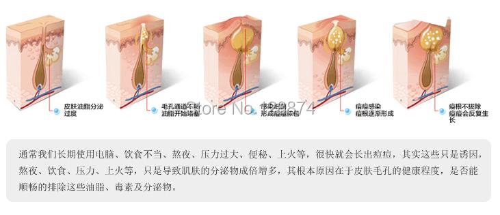 Горячая распродажа акне крем блейн продукты обессоливать блейн масло-управления крем для лица 30 г и отправить пк носовые мембраны бесплатная доставка