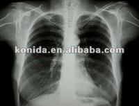 thermal camera,medical image film,film+per+adulti+gratis
