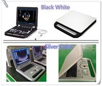 (MSLCU11D)HPRF 3D 4D portable color doppler ultrasound machine/device