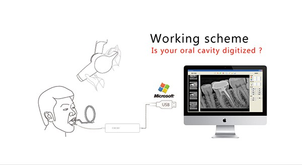 03 Digital dental x ray sensor YSDEN-500.jpg