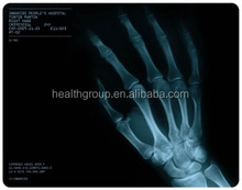 Agfa/x-ray film scrap/high-end Fuji x-ray film medical film/surgical equipment/dry medical x-ray film for inkjet