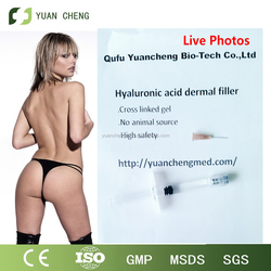 2015 Buttocks Augmentation Injectable Hyaluronic Acid for Sale 20ml