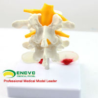[Sample GS-16] Plastic Disc Lumbar Spinal Column L4 to L5 Teaching Model with Removable Stand