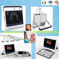 Doppler Ultrasound Equipment Type portable ultrasound machines for sale