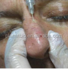acide hyaluronique nose up,filler for contouring the face injection