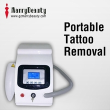Distributors wanted tattoo removal laser machine china laser