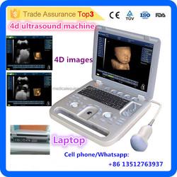 Popular ultrasound !MSLCU18i Latest cheap laptop 4D Ultrasound Machine including 4D Probe