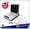 laptop ultrasound machine&doppler ultrasound price DW-C60