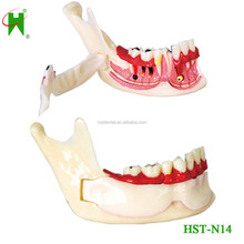 Organización de mandíbula / dental descomposición mandíbula modelo