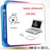 DW-500 full digital ultrasound scanner laptop & portable ultrasound device