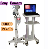 New RCS-500 Digital Video Electronic Colposcope SONY Camera CCD 800,000 pixels detecting Vulva, vagina and the cervix