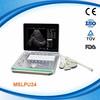 MSLPU24 Affordable laptop portable ultrasound scanner manufacturer