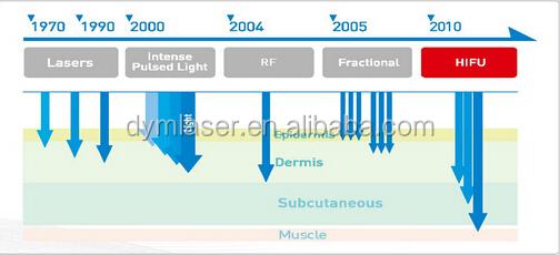 集束超音波hifuアメリカの高強度( hifu) 皮膚の引き締め・smasリフティング仕入れ・メーカー・工場