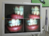 Dentist Dental LED Wireless Wifi Intraoral Camera with 17 Inch LCD and Holder