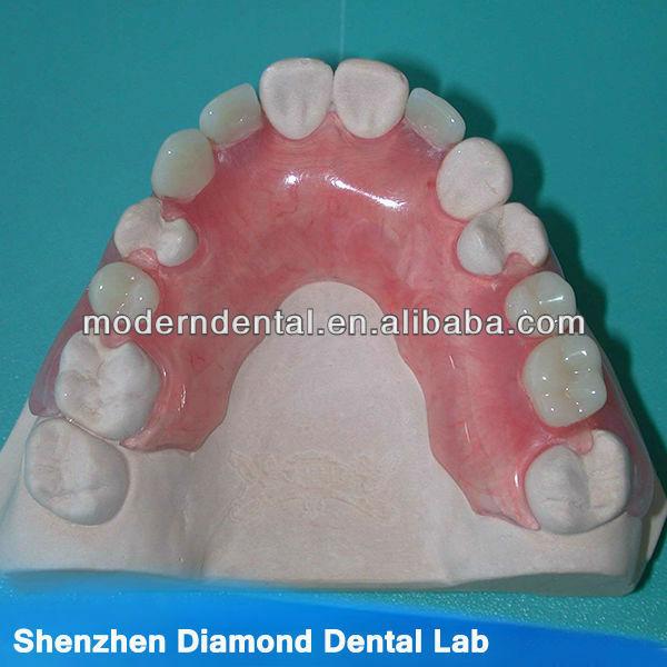 how to get denture glue off teeth