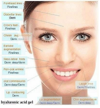 cross-linked hyaluronic acid gel injectable dermal filler