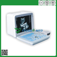 Hot sale veterinary portable ultrasound scanner with low price