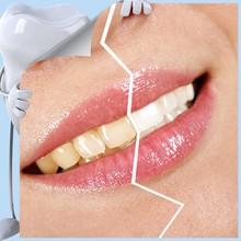 Made In China Makeup Kit, Professional Teeth Whitening Kits