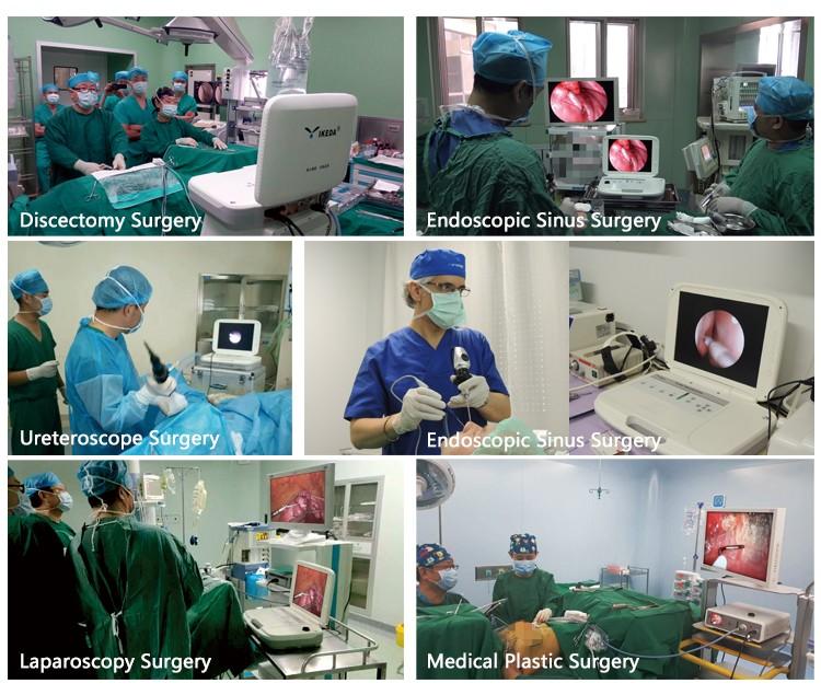 Медицинская лор портативный эндоскопа камерой для эндоскопа жесткая