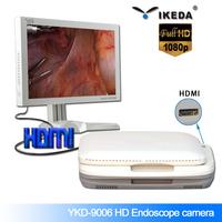 Portable camera endoscopy colonoscopy equipment