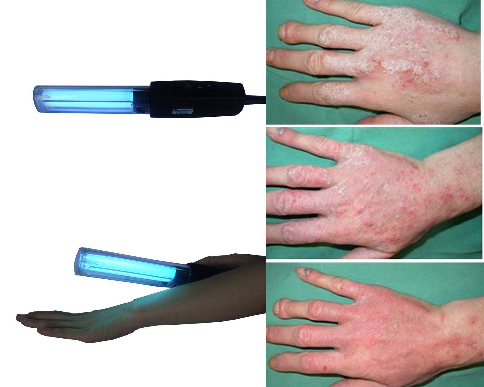 Uvb Lamp uk 311nm Narrow-band Uvb Lamp For