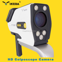 YKD-3004 video portable digital colposcope with SD card/vagina pictures camera