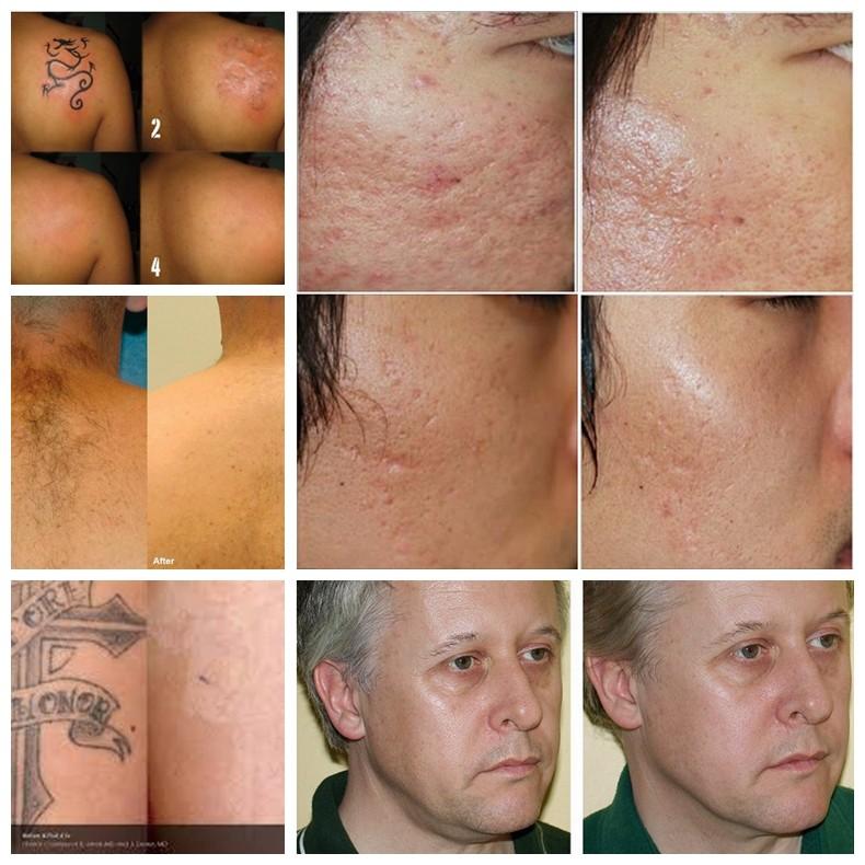 Удаление татуажа лазером клиники