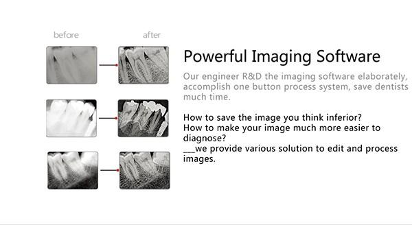 15 Digital dental x ray sensor YSDEN-500.jpg