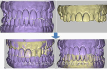 CAD/CAM dental 3D scanner / dental model 3D scanning
