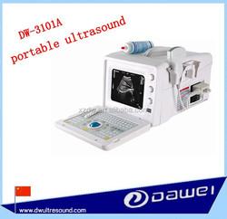 b mode portable ultrasound scanner & full digital ultrasound equipment