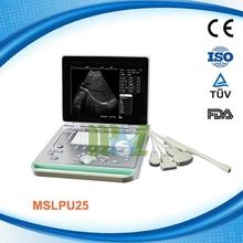 MSLPU24R 2015 CE approved B mode Fully Digital Portable Ultrasound Scan Machine /scanner