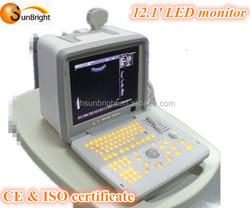 cheap price laptop/portable digital ultrasonic led scanner