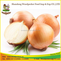 Chinese new season all kinds of onions