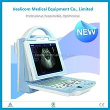 HU5600 Portable Full Digital Ultrasound equipment