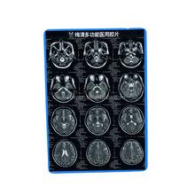 Meiqing x-ray cr