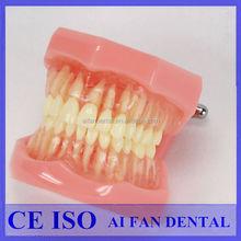 [ AiFan Dental ] dental removable teeth 7005 dental study model for train students