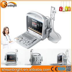 Color Doppler Ultrasound Scanner Portable Ultrasound Machine with Cheap Price